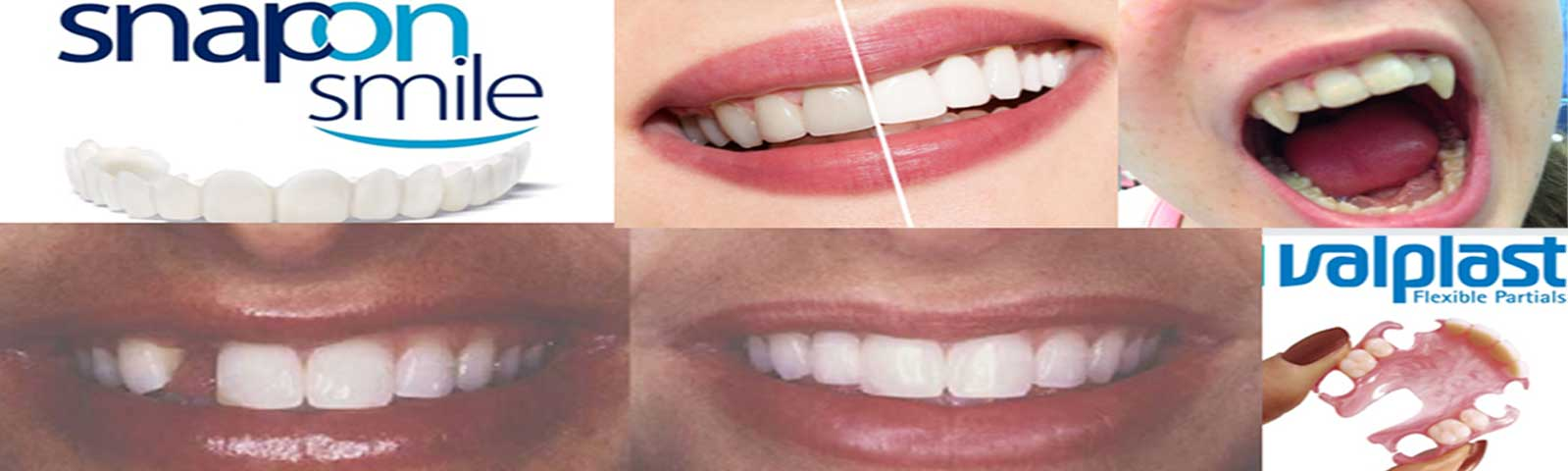 About us denture cosmetics affordable dentures home visits for dentures solutioingenieria Choice Image